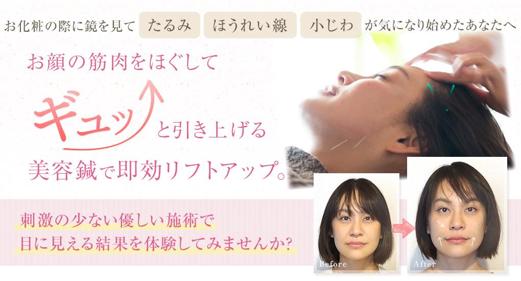 平塚市の美容鍼灸院「あまね鍼灸院」の公式ホームページです