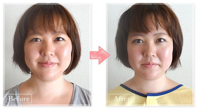 美容鍼小顔BeforeAfter_Mさん