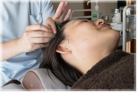 美容鍼灸施術の流れ08