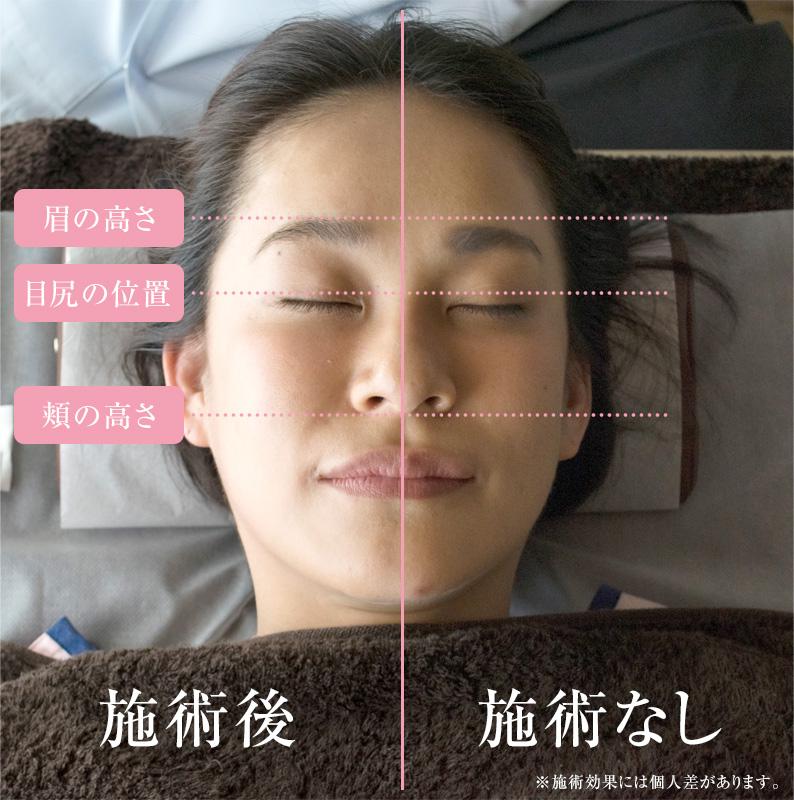 平塚市の美容鍼あまね鍼灸院の美容鍼施術の様子