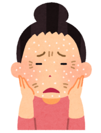 乾燥肌のイメージ